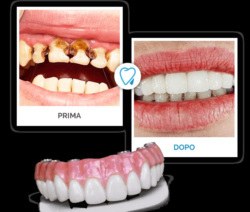 Prima e Dopo - Migliori Dentisti Croazia