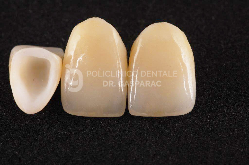 Corone in ceramica zirconio 1