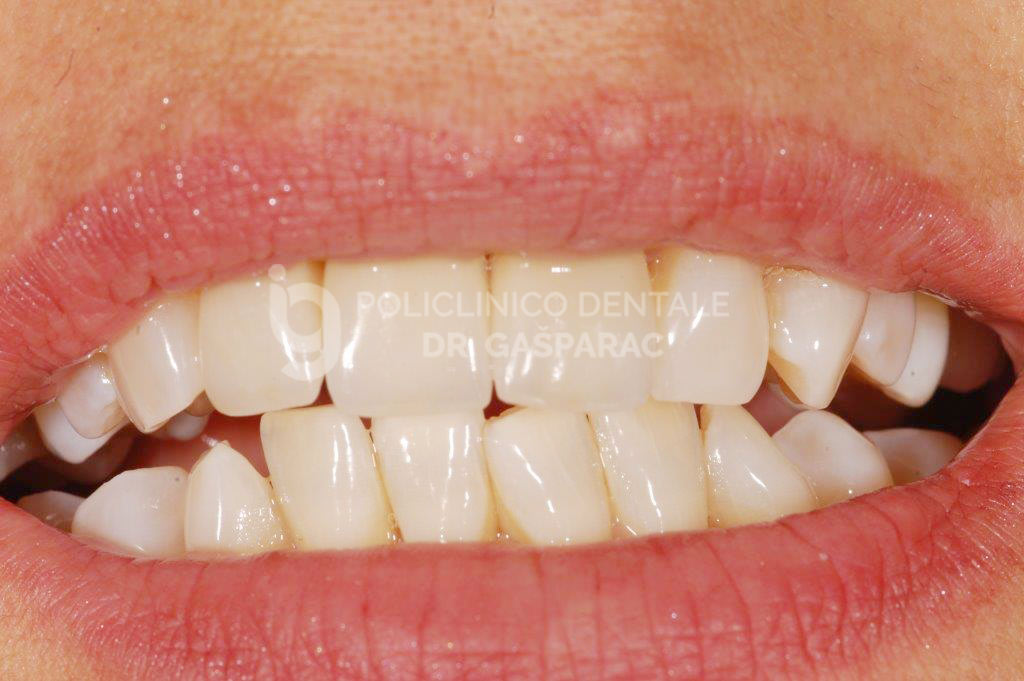 Corone in ceramica zirconio 5