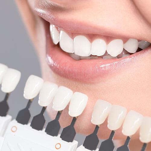 Turismo dentale in Croazia