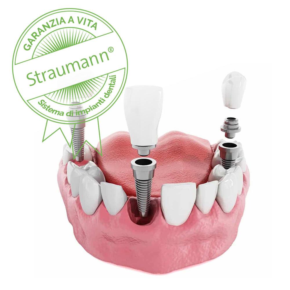 impianti dentali con garanzia a vita